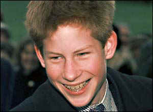 Prince Harry with braces