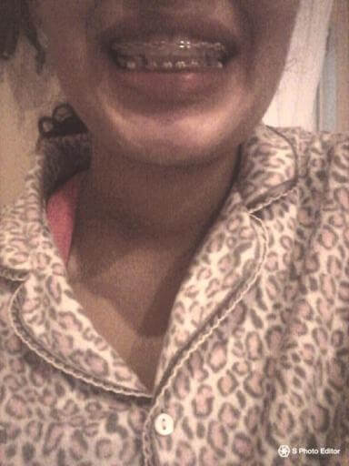 taking braces off
