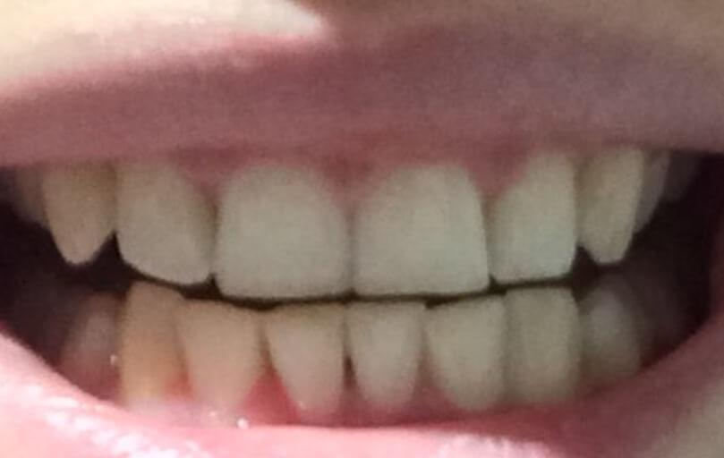 Gap In Bottom Teeth