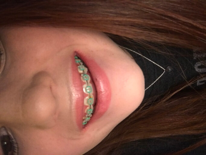 braces with green rubber bands