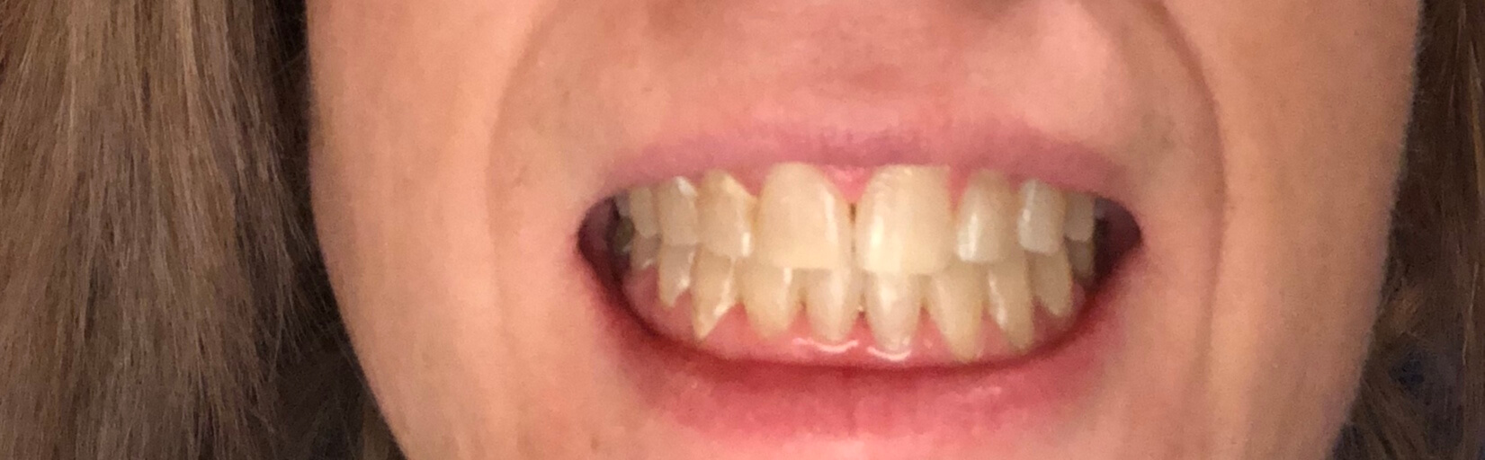 gaps after braces