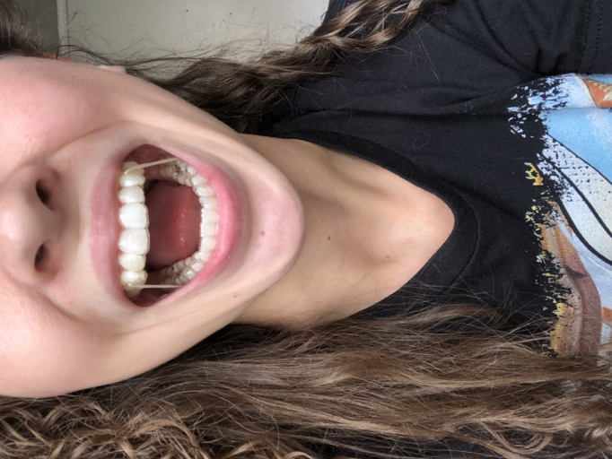 Invisalign with Rubber Bands
