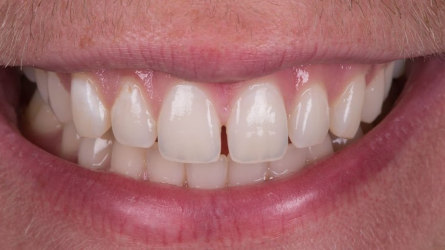Can my Hawley Retainers fix my tooth gaps and overbite
