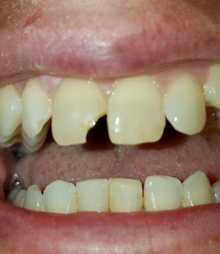 Teeth Cracked Ice Cream