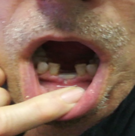 How long does it take for adult tooth to come in after ...