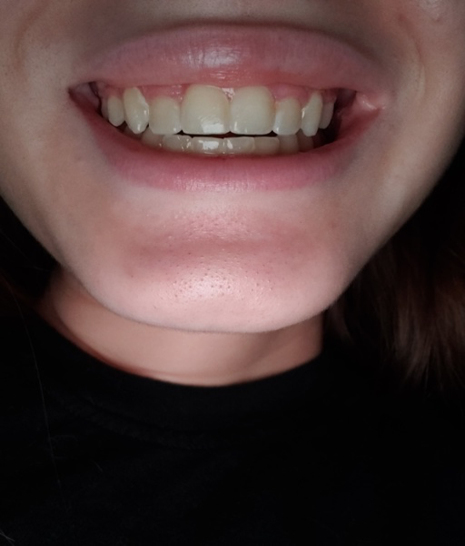 My Retainer Is Stuck In My Mouth And Causing Pain