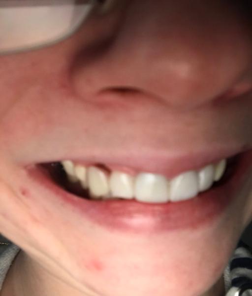 Chipped Bottom Denture
