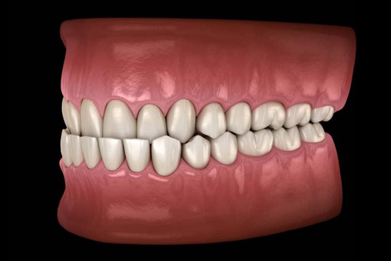 Can Invisalign fix n impacted premolar