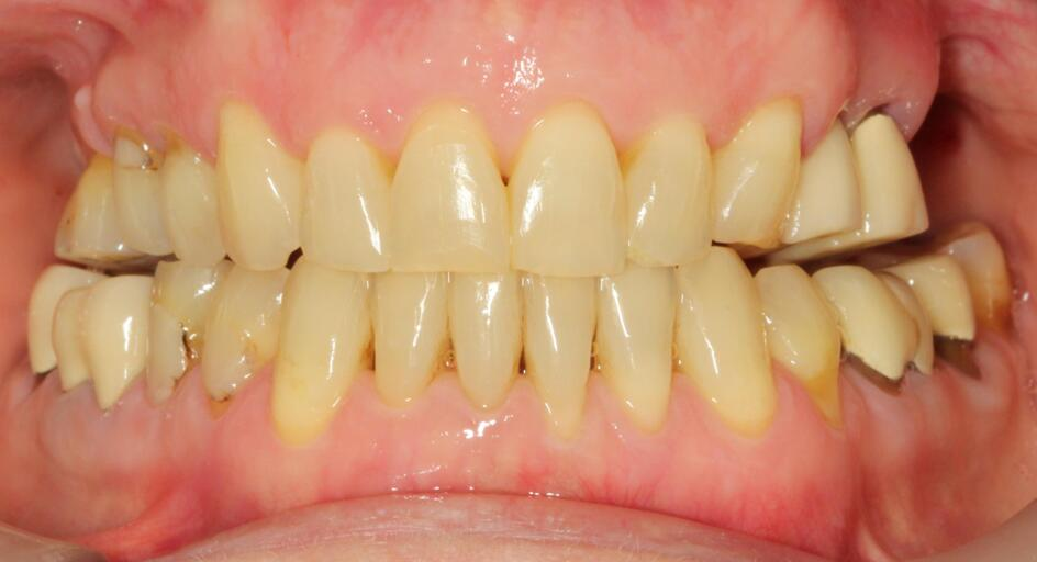 Help appreciated... Messed up braces treatment