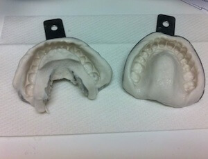 Molds Of Teeth For Braces