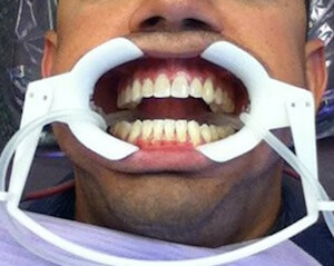 how to get insurance to pay for invisalign